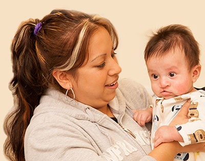 Stanford Children's Health Cleft and Craniofacial young patient and his mom