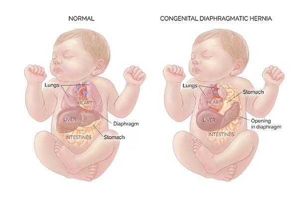 Hernia diafragma adalah kondisi medis yang ditandai dengan adanya lubang pada diafragma