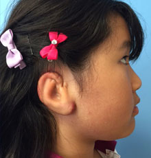 Microtia patient gallery