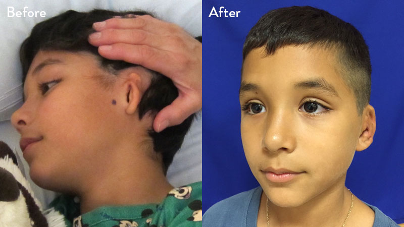 10 year old male with grade 2 microtia 1