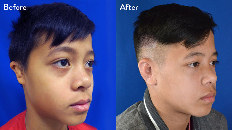 10-year-old Male with Grade 2/3 Microtia