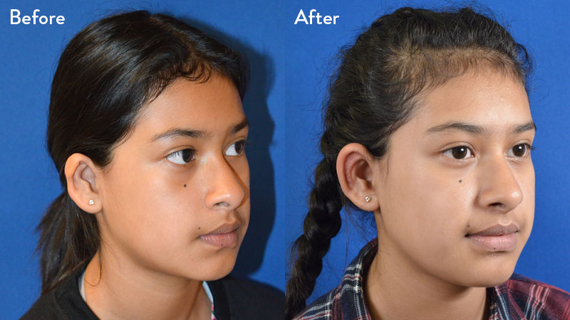 13-year-old Female with Grade 2 Microtia