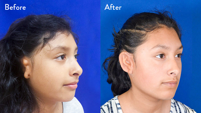 grade 2 microtia before and after close up