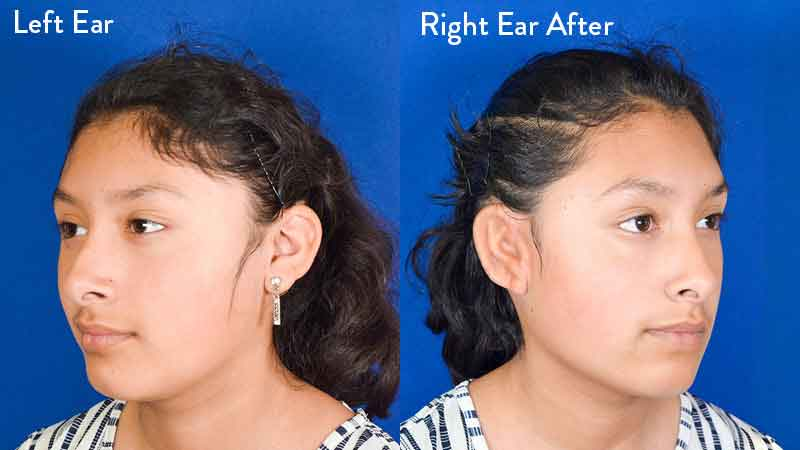 grade 2 microtia left and right ear after