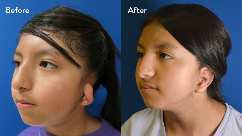 grade 2 microtia before and after