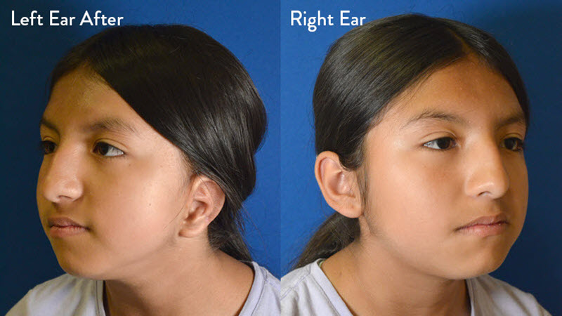 Microtia Grade 2 Female After