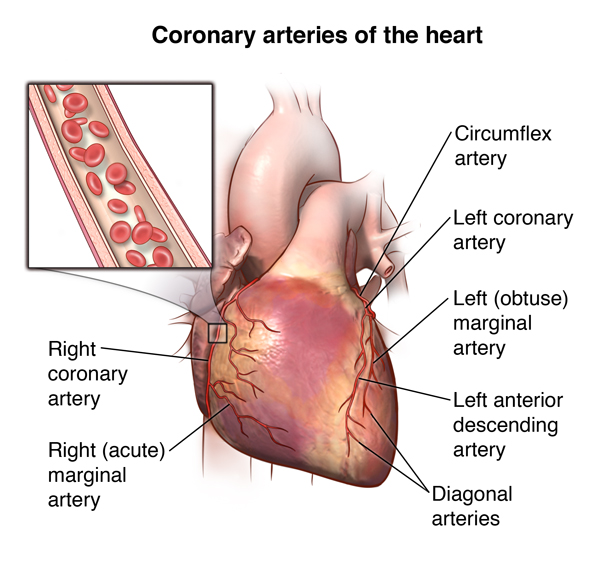 Anomalous Coronary Artery Aca