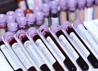 Picture of vials of blood, labeled