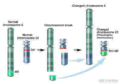 Philadelphia chromosome; three-panel drawing shows a piece of chromosome 9 and a piece of chromosome 22 breaking off and trading places, creating a changed chromosome 22 called the Philadelphia chromosome. In the left panel, the drawing shows a normal chromosome 9 with the abl gene and a normal chromosome 22 with the bcr gene. In the center panel, the drawing shows chromosome 9 breaking apart in the abl gene and chromosome 22 breaking apart below the bcr gene. In the right panel, the drawing shows chromosome 9 with the piece from chromosome 22 attached and chromosome 22 with the piece from chromosome 9 containing part of the abl gene attached. The changed chromosome 22 with bcr-abl gene is called the Philadelphia chromosome.