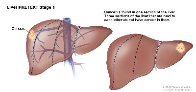 Liver PRETEXT Stage 1; drawing shows two livers. Dotted lines divide each liver into four vertical sections of about the same size. In the first liver, cancer is shown in the section on the far left. In the second liver, cancer is shown in the section on the far right.
